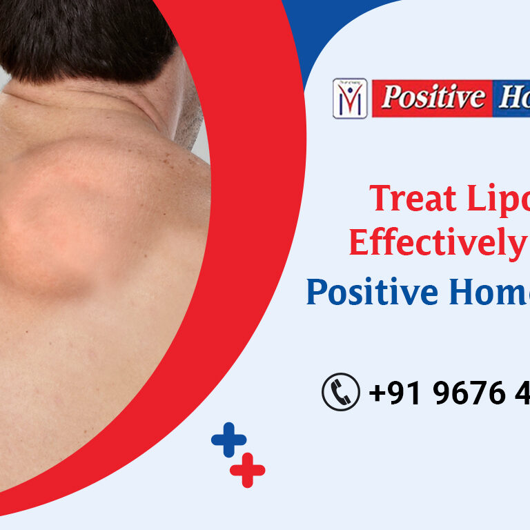 lipoma treatment in homeopathy